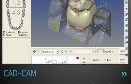 Próteses CAD/CAM em Santos