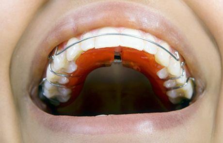 Ortodontia e Ortopedia em Santos