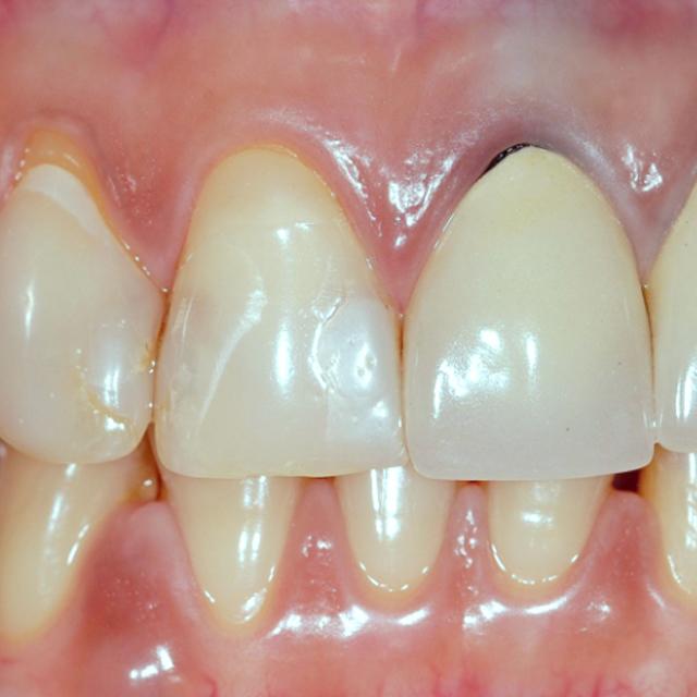 Dentaduras em Santos